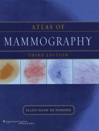 Atlas of Mammography 3rd Edition PDF