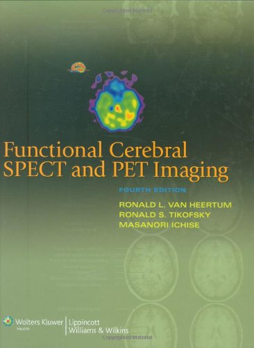 Functional Cerebral SPECT and PET Imaging 4th Edition PDF