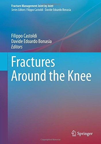 Fractures Around the Knee PDF