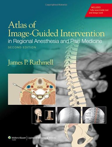 Atlas of Image-guided Intervention in Regional Anesthesia and Pain Medicine 2nd Edition PDF
