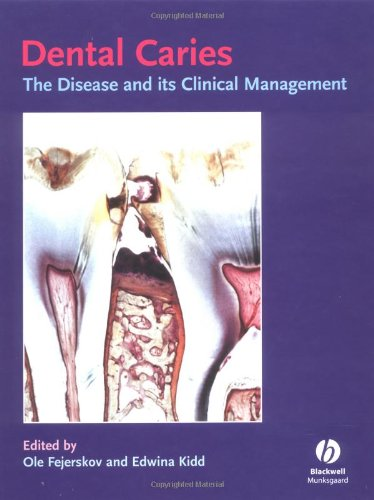 Dental Caries The Disease and Its Clinical Management PDF