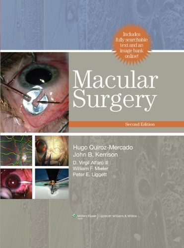 Macular Surgery 2nd Edition PDF