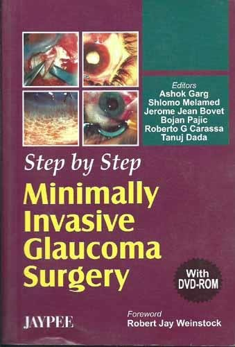 Step by Step Minimally invasive Glaucoma Surgery PDF