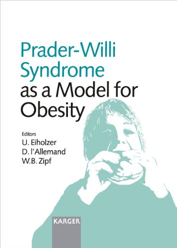 Prader-Willi Syndrome as a Model for Obesity PDF