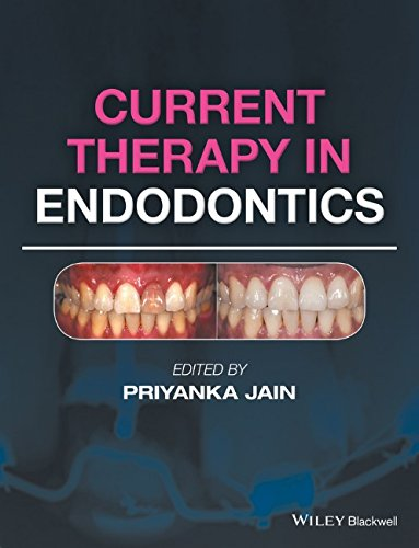 Current Therapy in Endodontics PDF