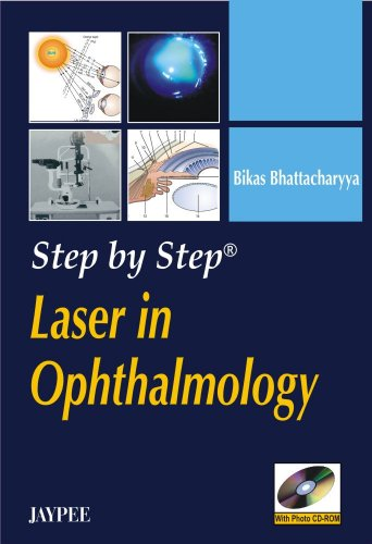 Laser in Ophthalmology 1st Edition PDF