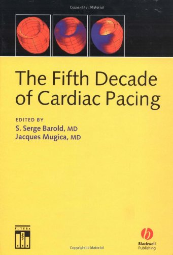 The Fifth Decade of Cardiac Pacing PDF