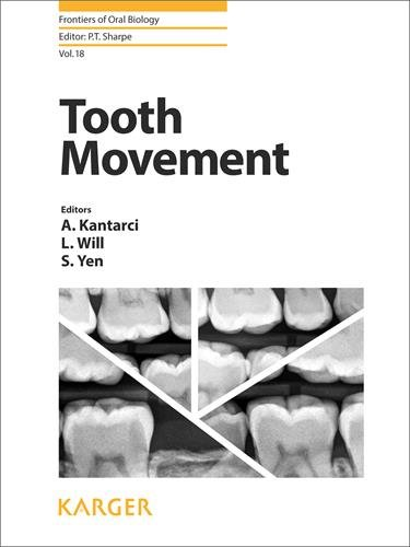 Tooth Movement 1st Edition PDF