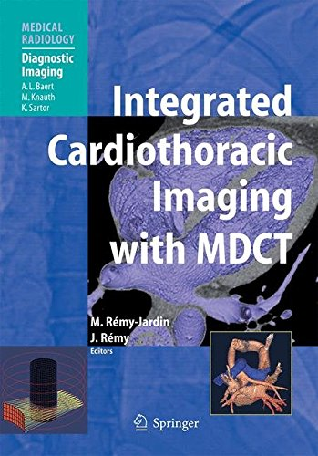 Integrated Cardiothoracic Imaging with MDCT PDF
