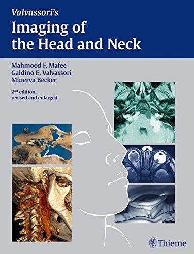 Imaging of the Head and Neck Second Edition PDF