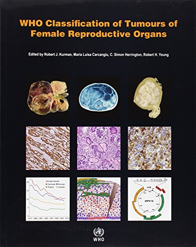 WHO Classification of Tumours of Female Reproductive Organs PDF