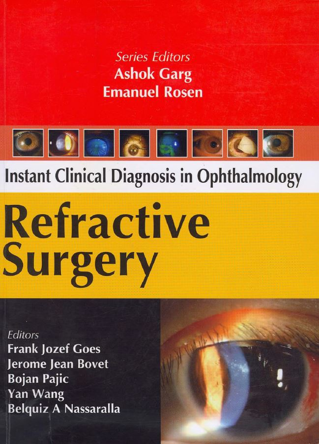 Icd Ophthalmology Refractive Surgery PDF