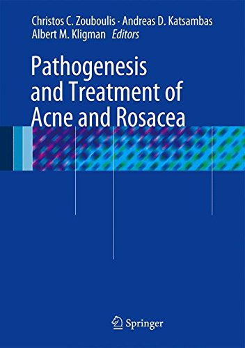Pathogenesis and Treatment of Acne and Rosacea PDF
