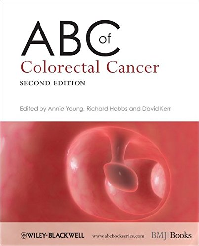 ABC of Colorectal Cancer 2nd edition PDF