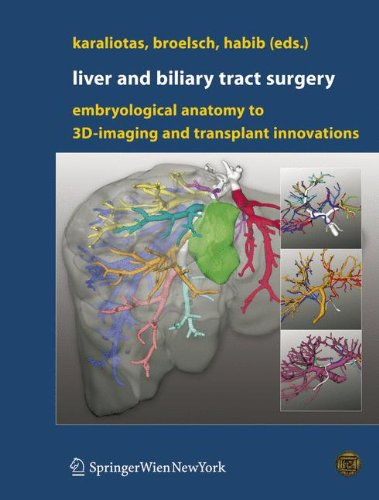 Liver and Biliary Tract Surgery PDF