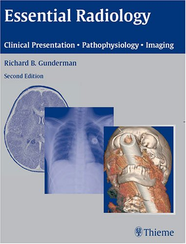 Essential Radiology PDF