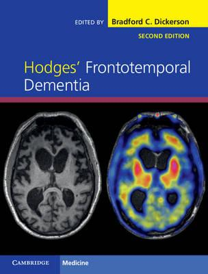Hodges' Frontotemporal Dementia 2nd Edition PDF