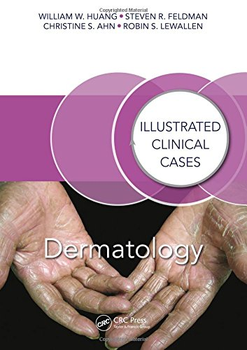 Dermatology Illustrated Clinical Cases PDF
