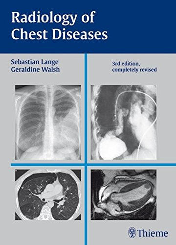 Radiology of Chest Diseases 3rd Edition PDF