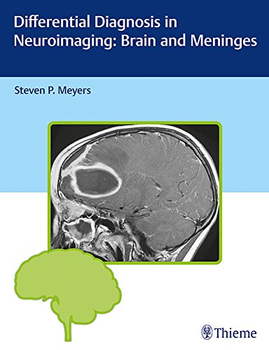 Differential Diagnosis in Neuroimaging PDF