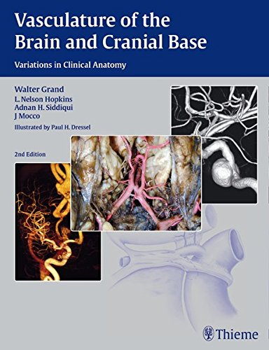 Vasculature of the Brain and Cranial Base 2nd Edition PDF