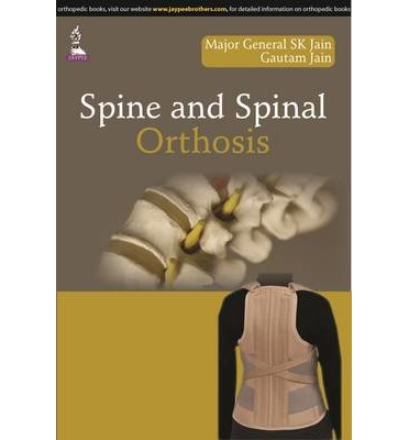 Spine and Spinal Orthosis PDF