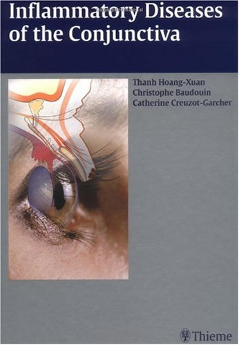 Inflammatory Diseases of the Conjunctivae PDF