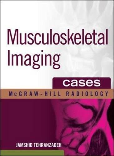 Musculoskeletal Imaging Cases PDF