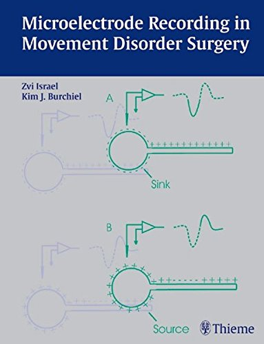 Microelectrode Recording in Movement Disorder Surgery PDF