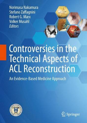 Controversies in the Technical Aspects of ACL Reconstruction PDF