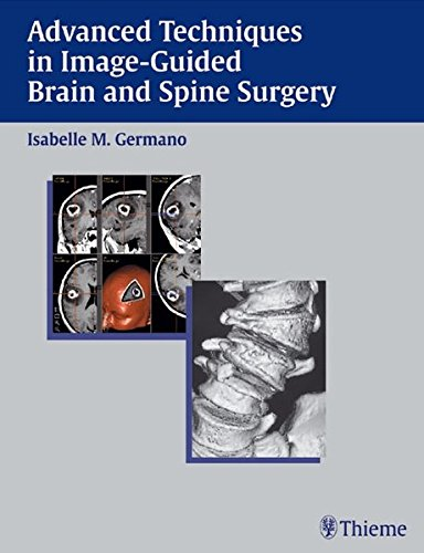 Advanced Techniques in Image-Guided Brain and Spine Surgery PDF