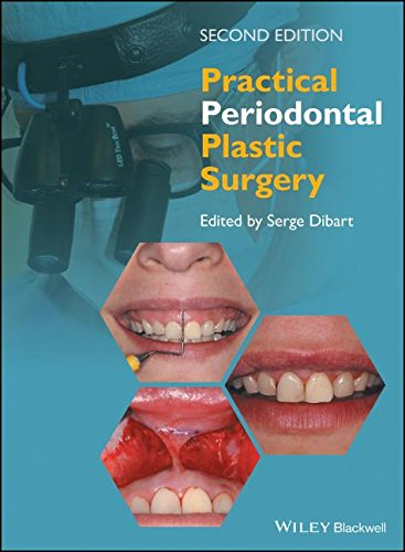 Practical Periodontal Plastic Surgery 2nd Edition PDF