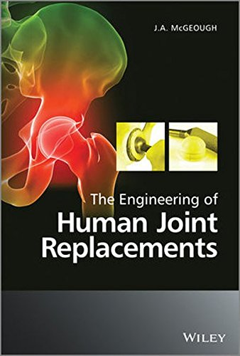 The Engineering of Human Joint Replacements PDF