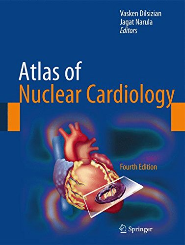Atlas of Nuclear Cardiology 4th edition PDF