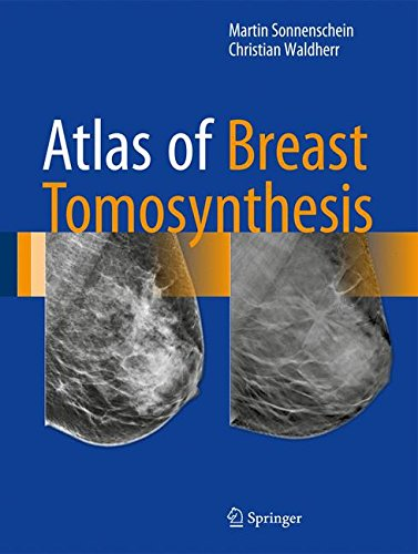 Atlas of Breast Tomosynthesis PDF Free Download