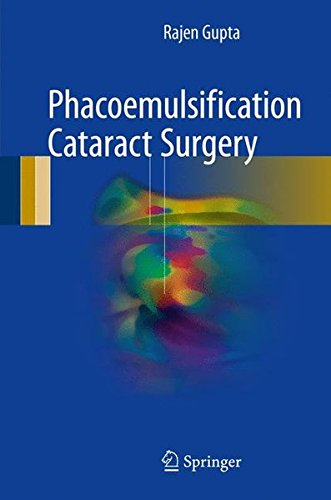 Phacoemulsification Cataract Surgery PDF