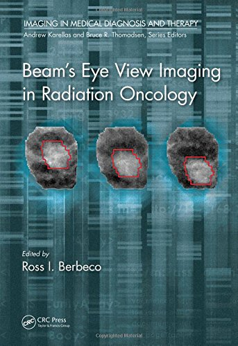 Beam's Eye View Imaging in Radiation Oncology PDF