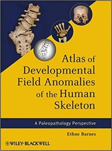 Atlas of Developmental Field Anomalies of the Human Skeleton PDF
