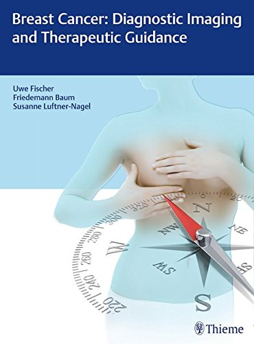 Breast Cancer Diagnostic Imaging and Therapeutic Guidance PDF