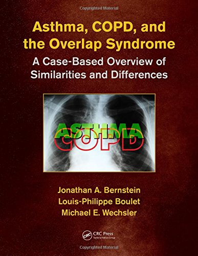 Asthma COPD and Overlap PDF