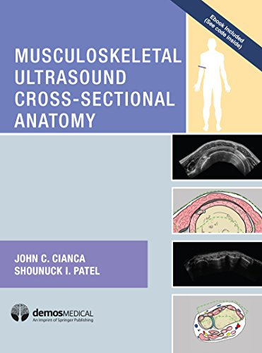 Ultrasound musculoskeletal fundamentals pdf of