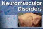 Neuromuscular Disorders 2nd Edition PDF