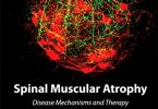 Spinal Muscular Atrophy 1st Edition PDF