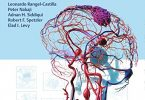 Decision Making in Neurovascular Disease 1st Edition PDF