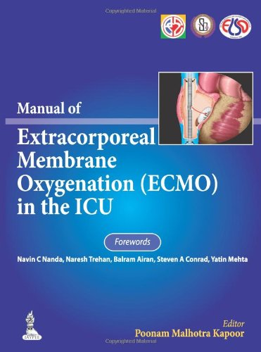 Manual of Extracorporeal Membrane Oxygenation Ecmo in the ICU PDF