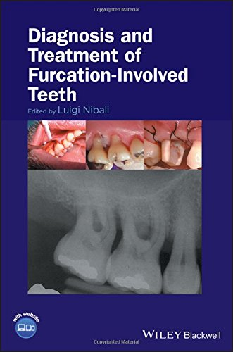 Diagnosis and Treatment of Furcation-Involved Teeth 1st Edition PDF
