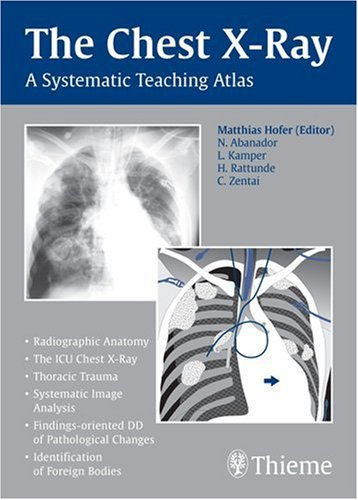 The Chest X-Ray A Systematic Teaching Atlas PDF