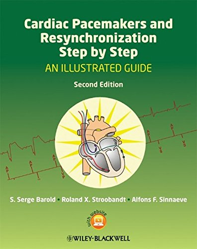 Cardiac Pacemakers and Resynchronization Step by Step 2nd Edition PDF