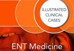 ENT Medicine and Surgery Illustrated Clinical Cases PDF