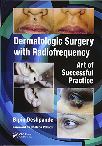 Dermatologic Surgery with Radiofrequency 1st Edition PDF